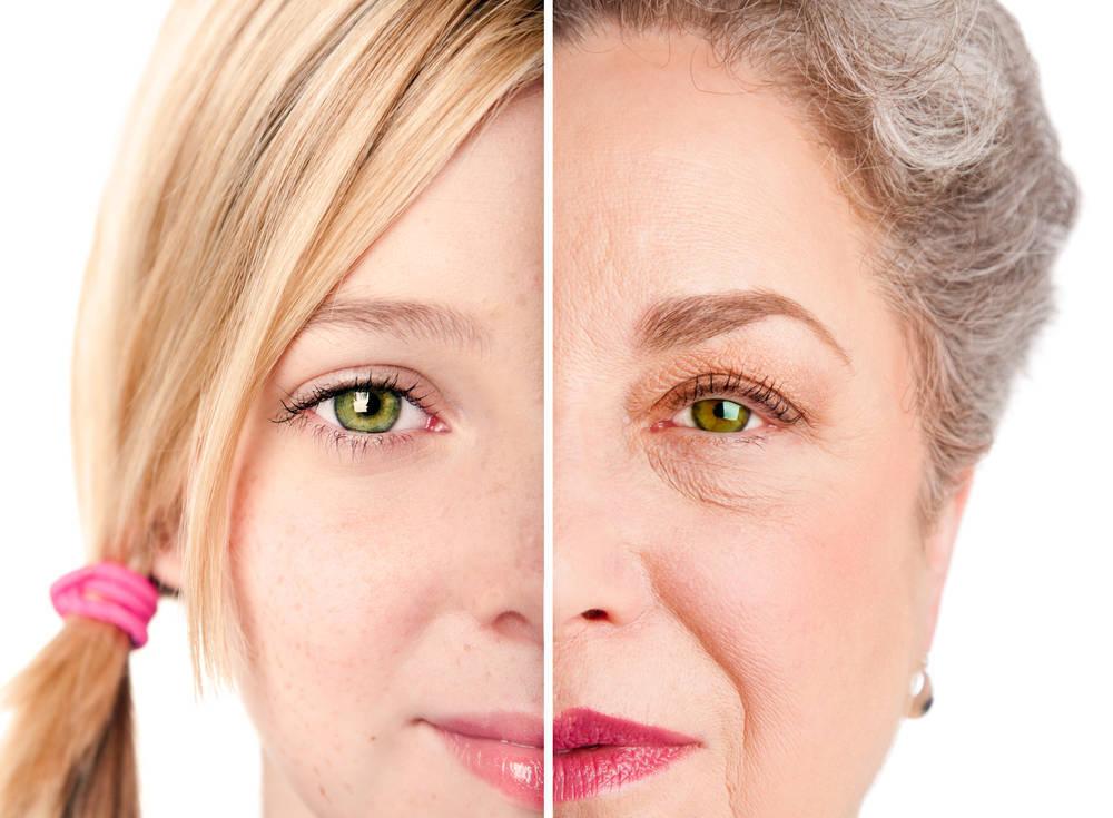 Las secuelas que deja el estrés sobre nuestro rostro